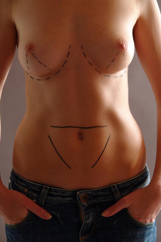 Was verursacht eine Infektion der Brust